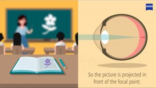 Was ist Myopia?